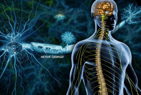 Ketogenic Diet in Treating Progressive Multiple Sclerosis ...