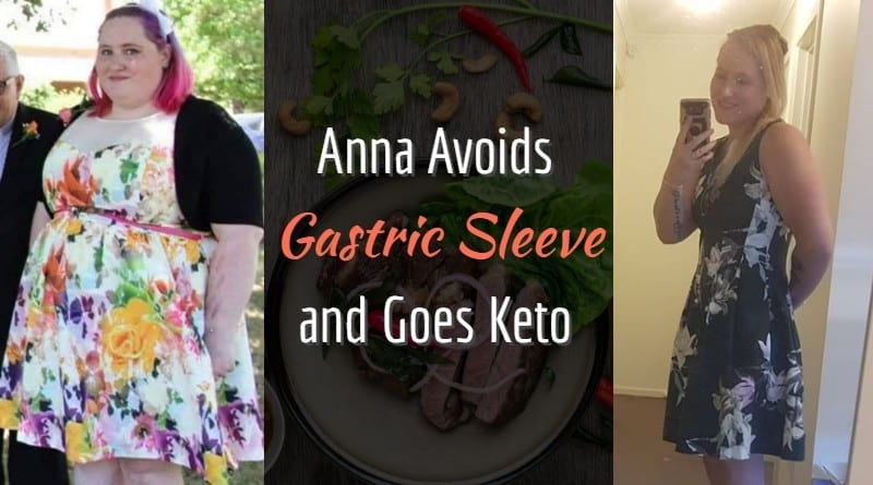 Anna Avoids Gastric Sleeve and Goes Keto